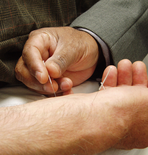 Interesting Facts About Acupuncture