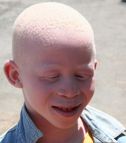 Interesting Facts About Albinism